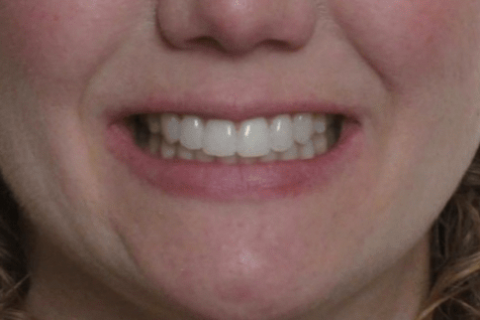 The Treatment Philosophy of Bandeen Orthodontics, Your Battle Creek Orthodontist