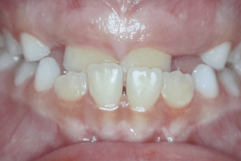 Case Study 45 – Crossbite
