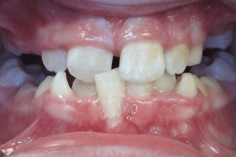 Case Study 43 – Crossbite