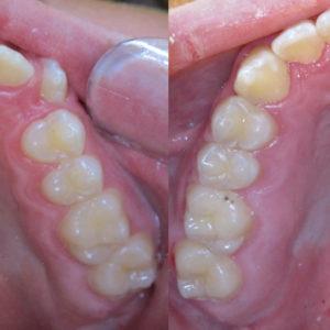 Bandeen Orthodontics Case Study #31