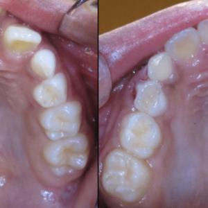 Bandeen Orthodontics Case Study #49