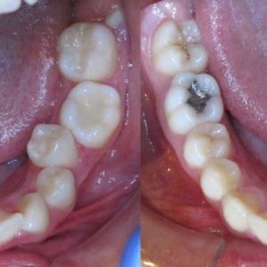 Bandeen Orthodontics Case Study #24