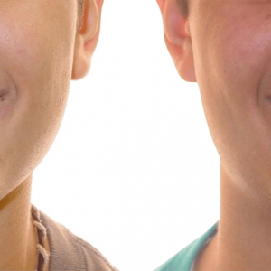 Bandeen Orthodontics Class II Orthodontics Case Studies