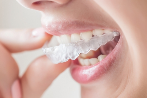 Try Invisalign in Battle Creek from Bandeen Orthodontics if You Want an Aligned Smile