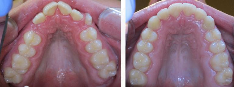 Bandeen Orthodontics Types of Braces